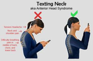 tech-neck