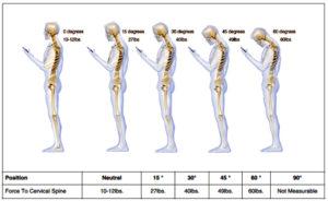 cervical-spine-stress